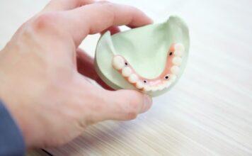 When did dental implants start?